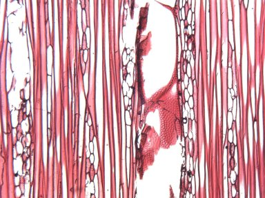 URTICACEAE Leucosyke salomensis