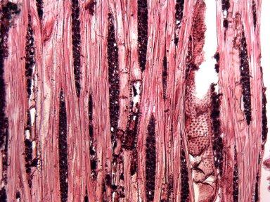 CUNONIACEAE Aistopetalum multiflorum