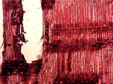 MYRTACEAE Lophostemon suaveolens