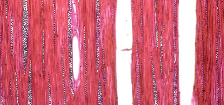 ANNONACEAE Xylopia xylantha