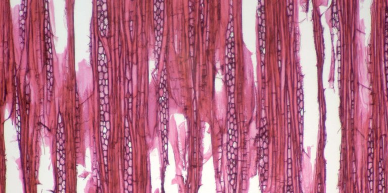 PHYLLANTHACEAE Phyllanthus juglandifolius