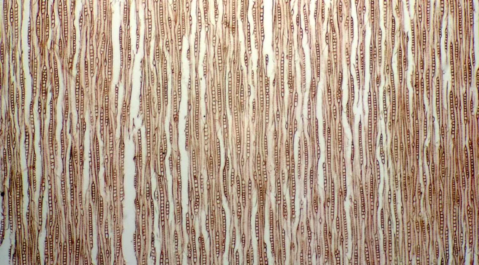 CELASTRACEAE Euonymus latifolius