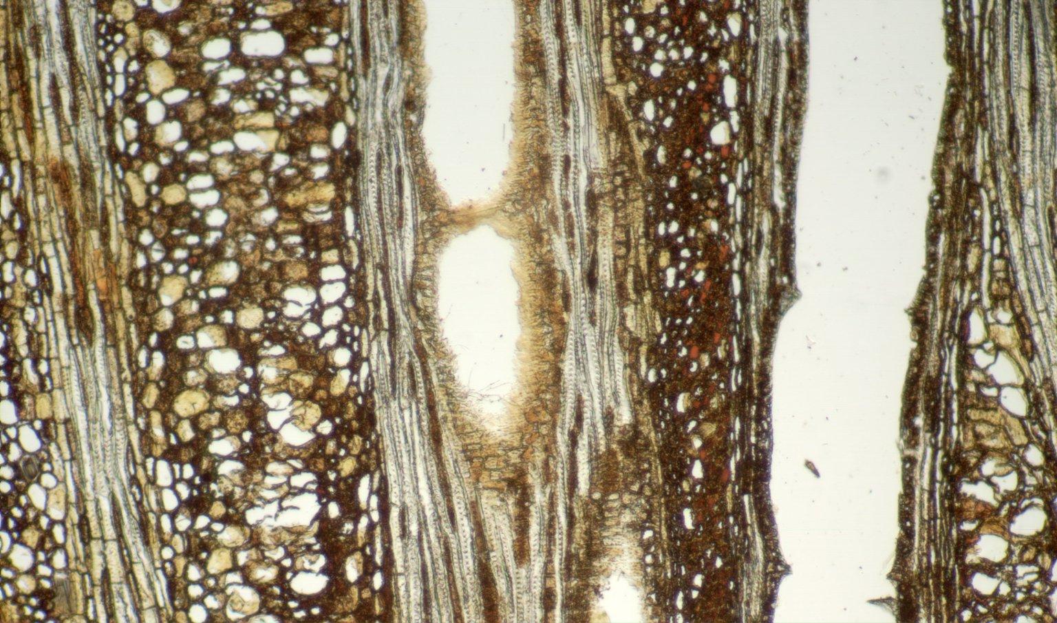 DILLENIACEAE Pinzona coriacea