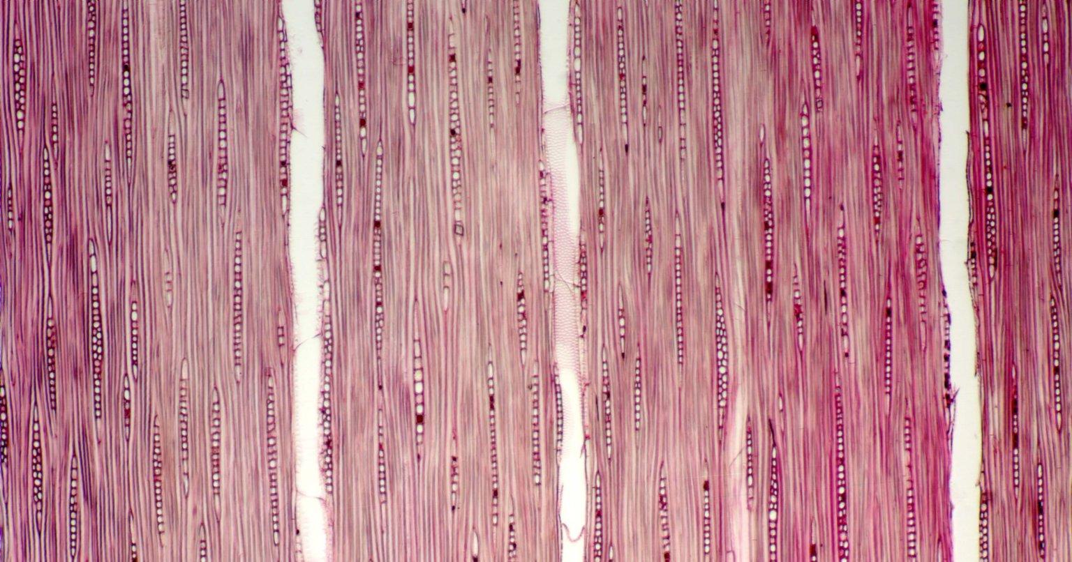 PHYLLANTHACEAE Phyllanthus valleanus