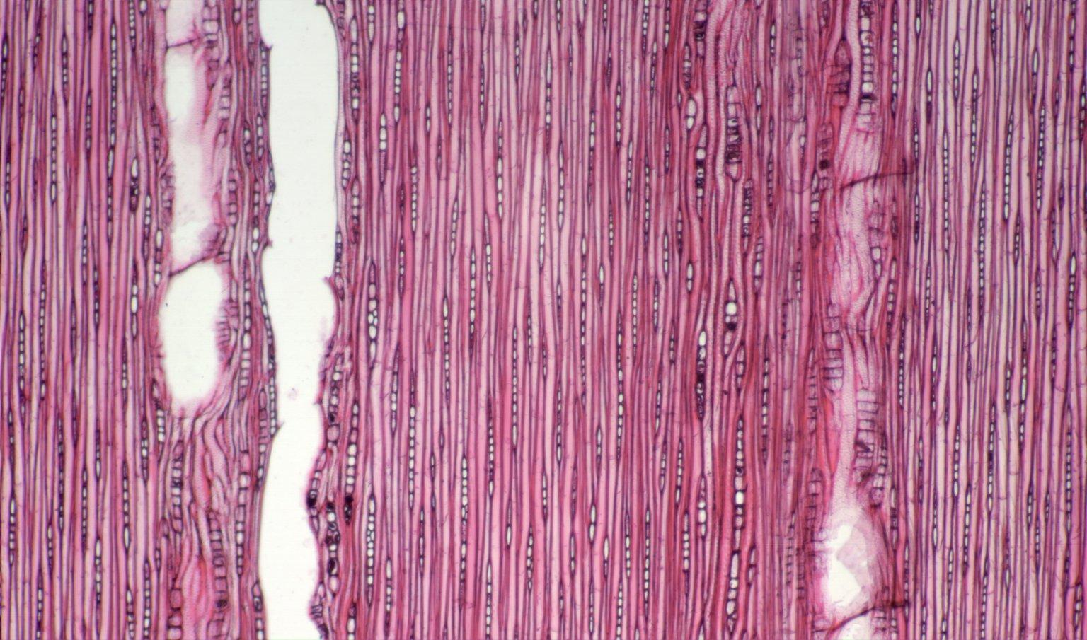 CALOPHYLLACEAE Calophyllum costatum