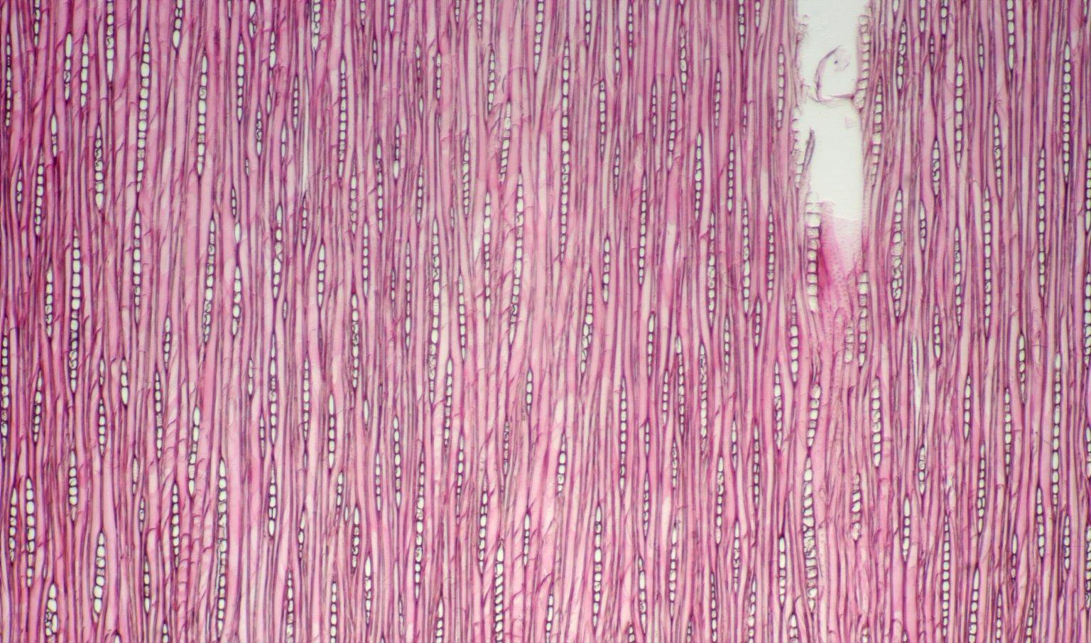 CALOPHYLLACEAE Calophyllum wallichianum