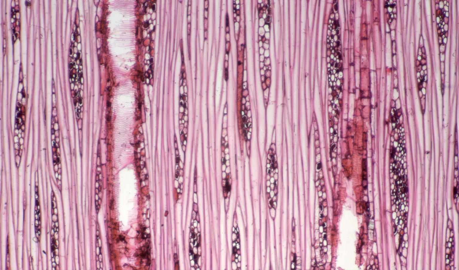 URTICACEAE Cecropia peltata