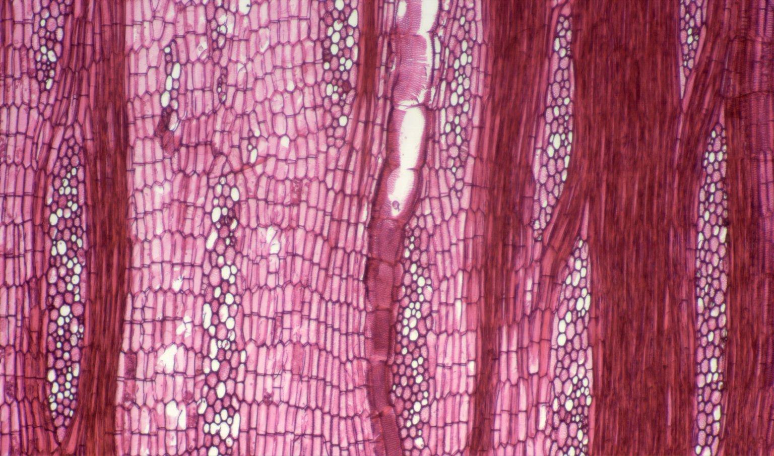 LEGUMINOSAE PAPILIONOIDEAE Erythrina eggersii