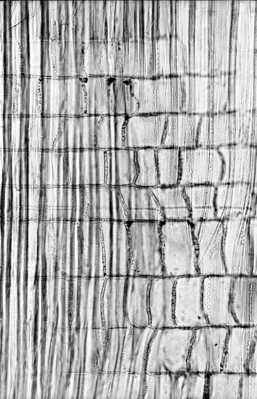 MELASTOMATACEAE Bellucia pentamera