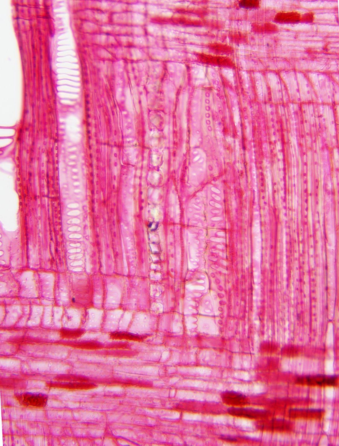 CUNONIACEAE Cunonia austrocaledonica