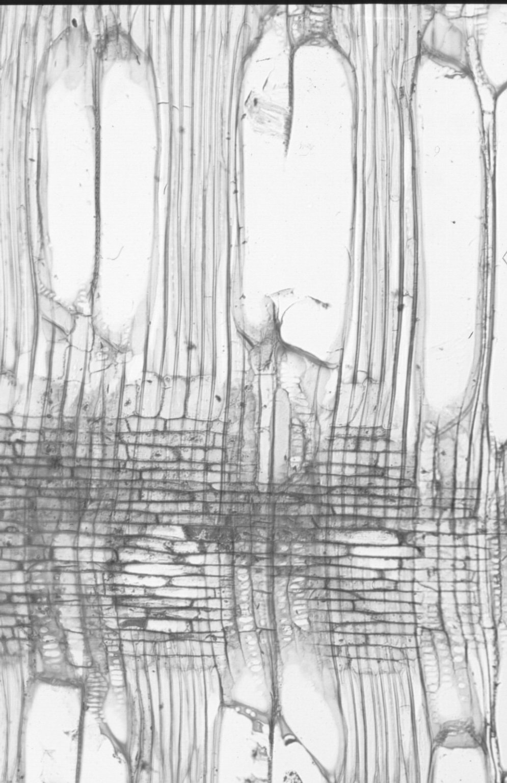 ARALIACEAE Arthrophyllum macranthum