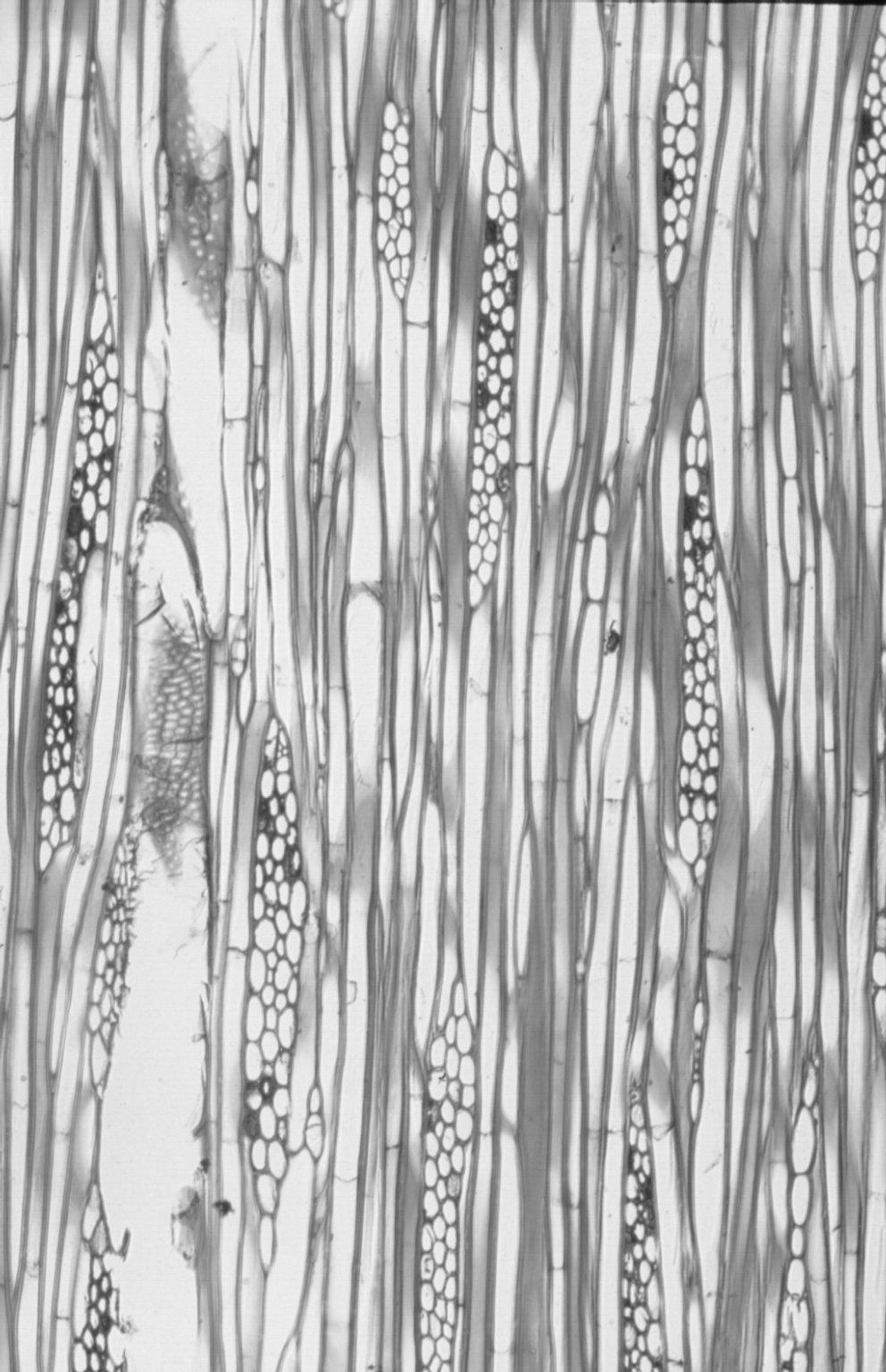 ARALIACEAE Sciadophyllum brownii