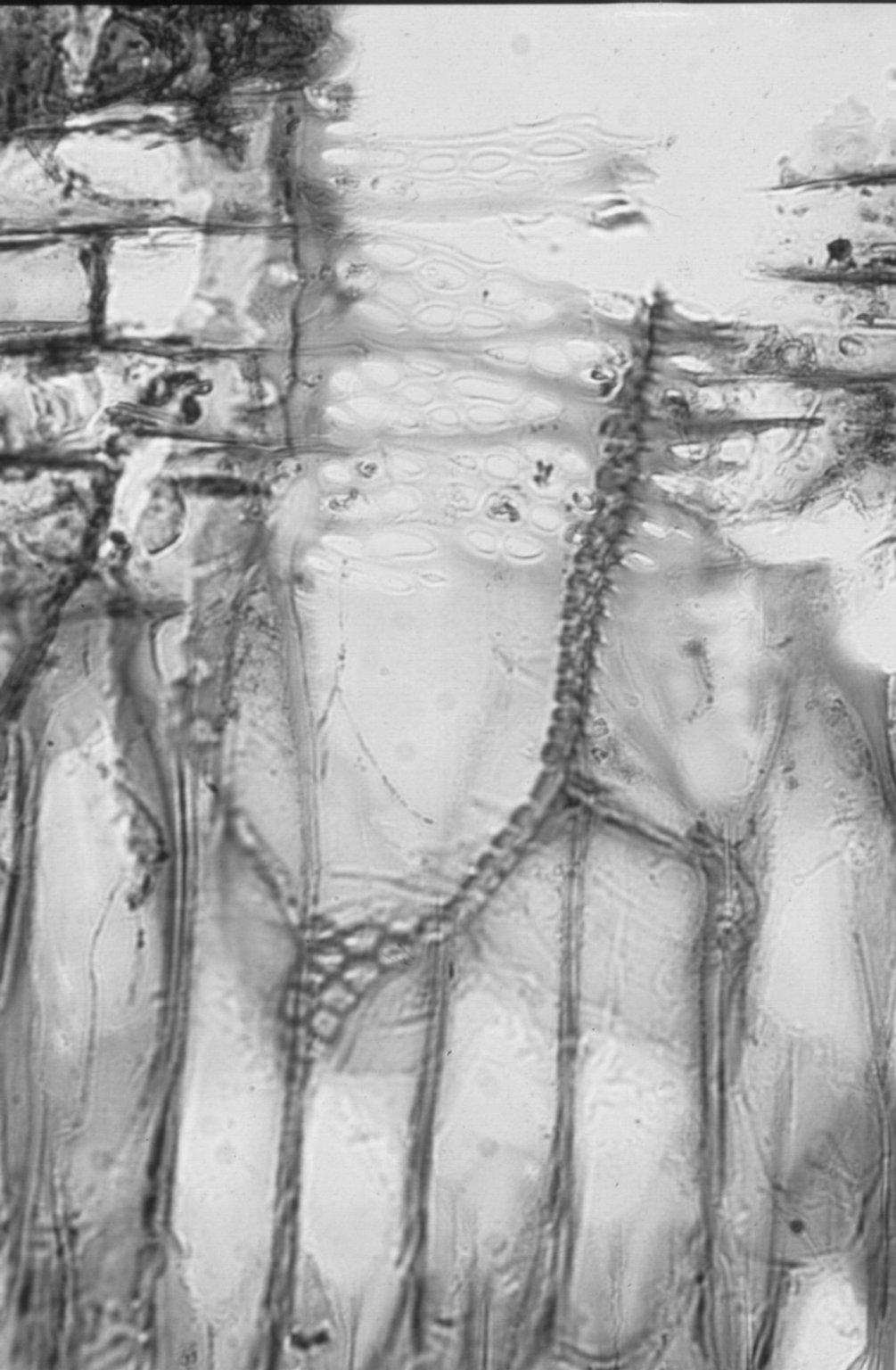 BURSERACEAE Boswellia serrata