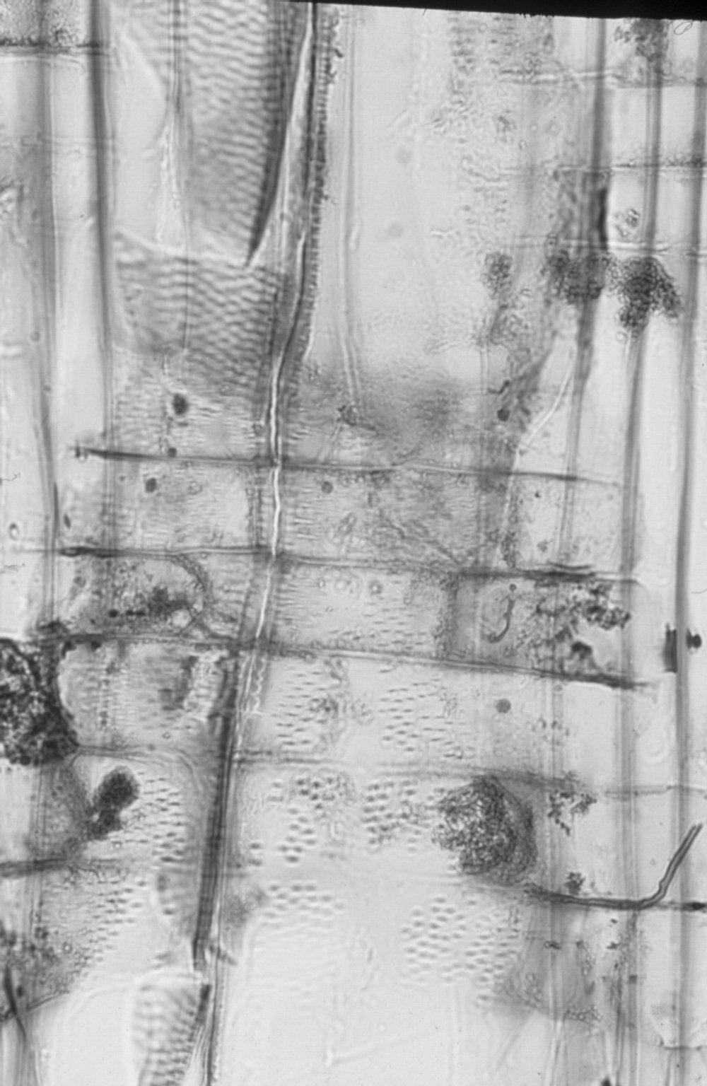 CELASTRACEAE Lophopetalum torricellense