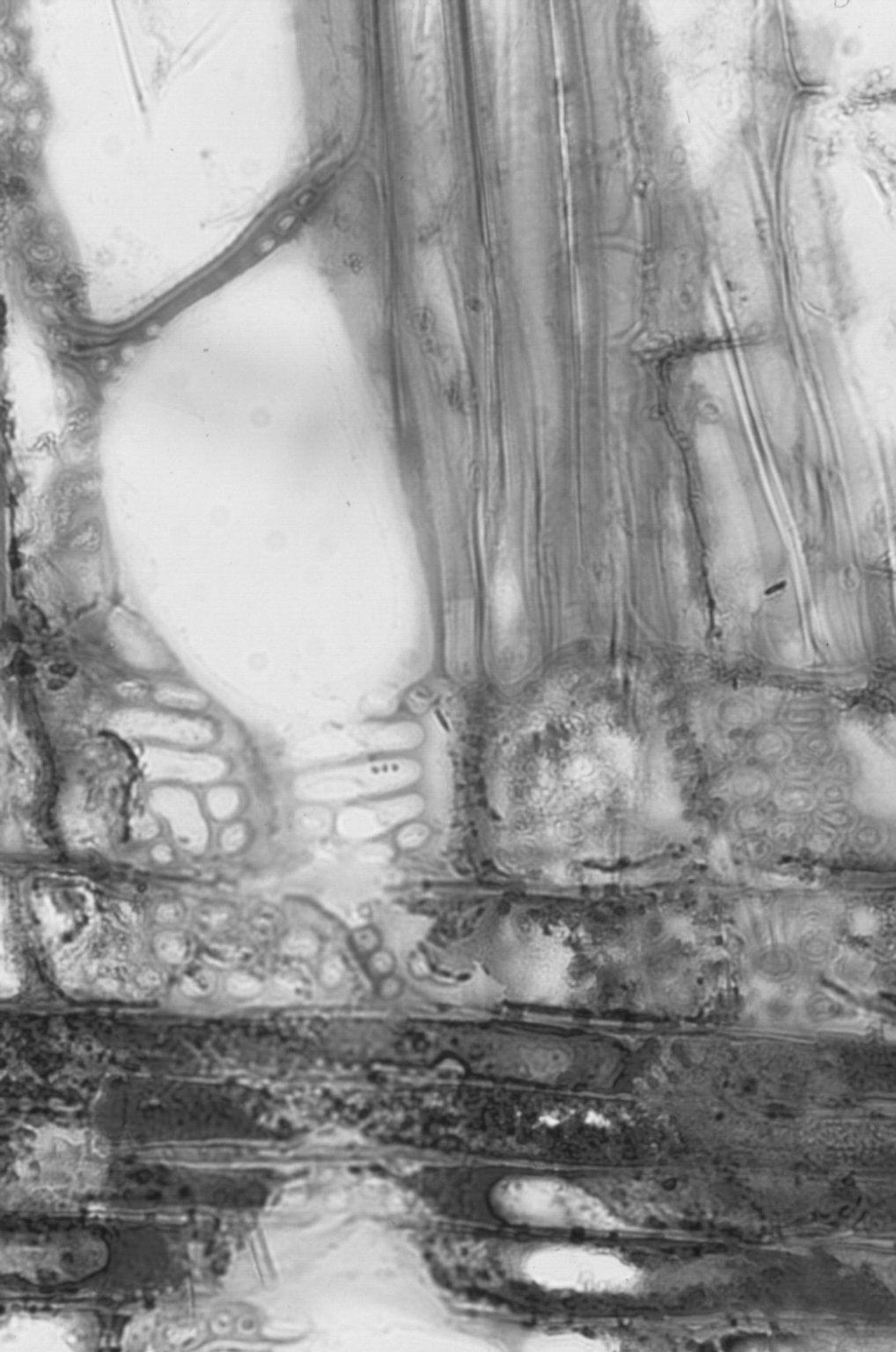 CUNONIACEAE Schizomeria serrata