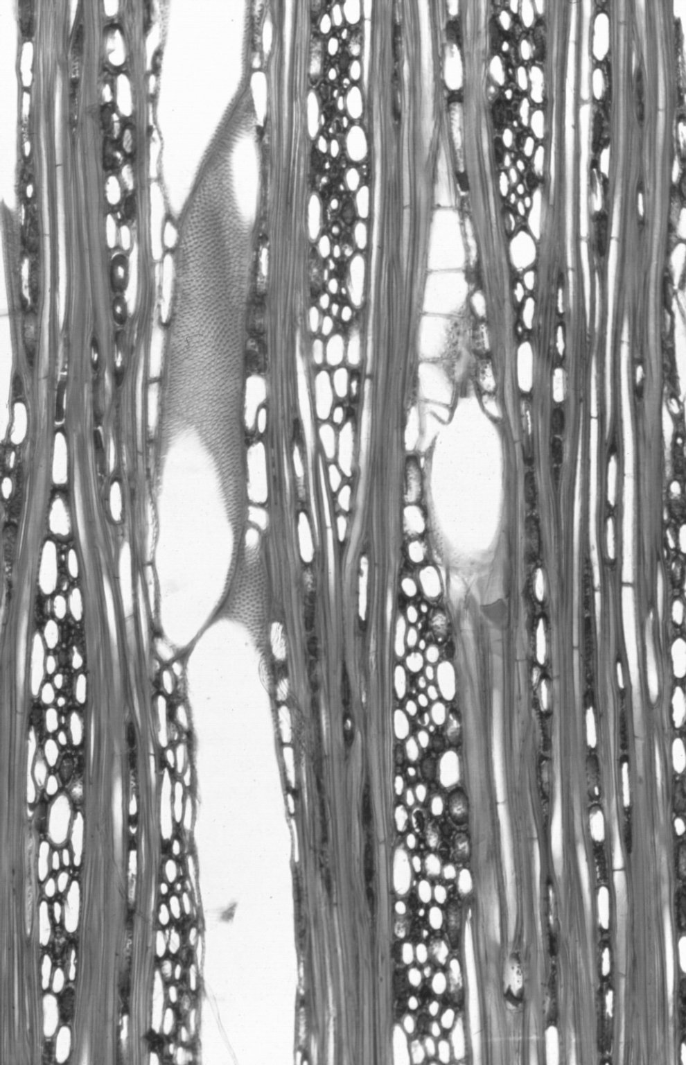 PHYLLANTHACEAE Glochidion ferdinandii