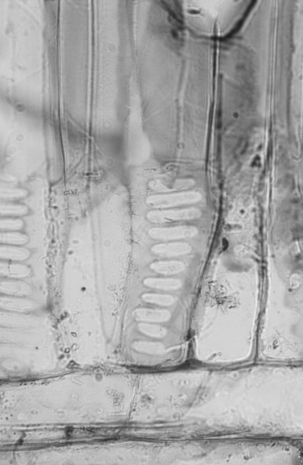 ATHEROSPERMATACEAE Dryadodaphne novoguineensis