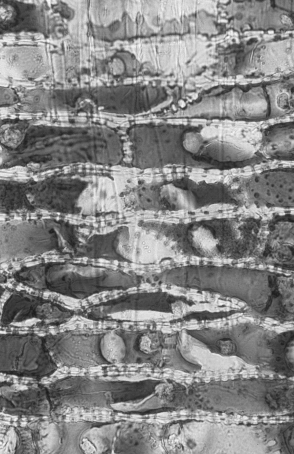 CHRYSOBALANACEAE Cyclandrophora asperula