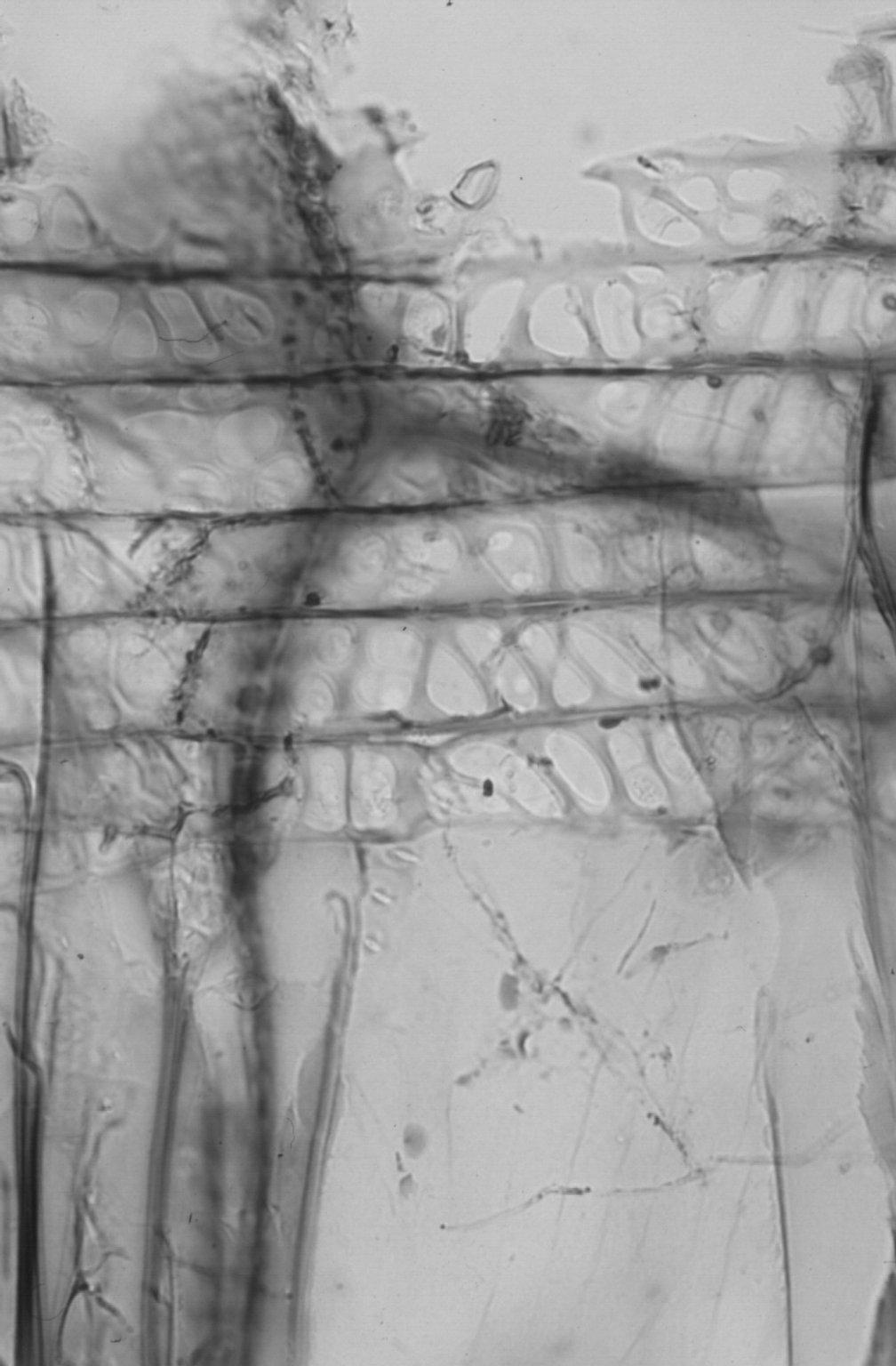 LYTHRACEAE Sonneratia apetala