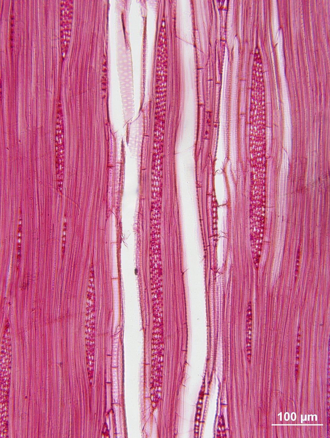 ULMACEAE Ulmus thomasii