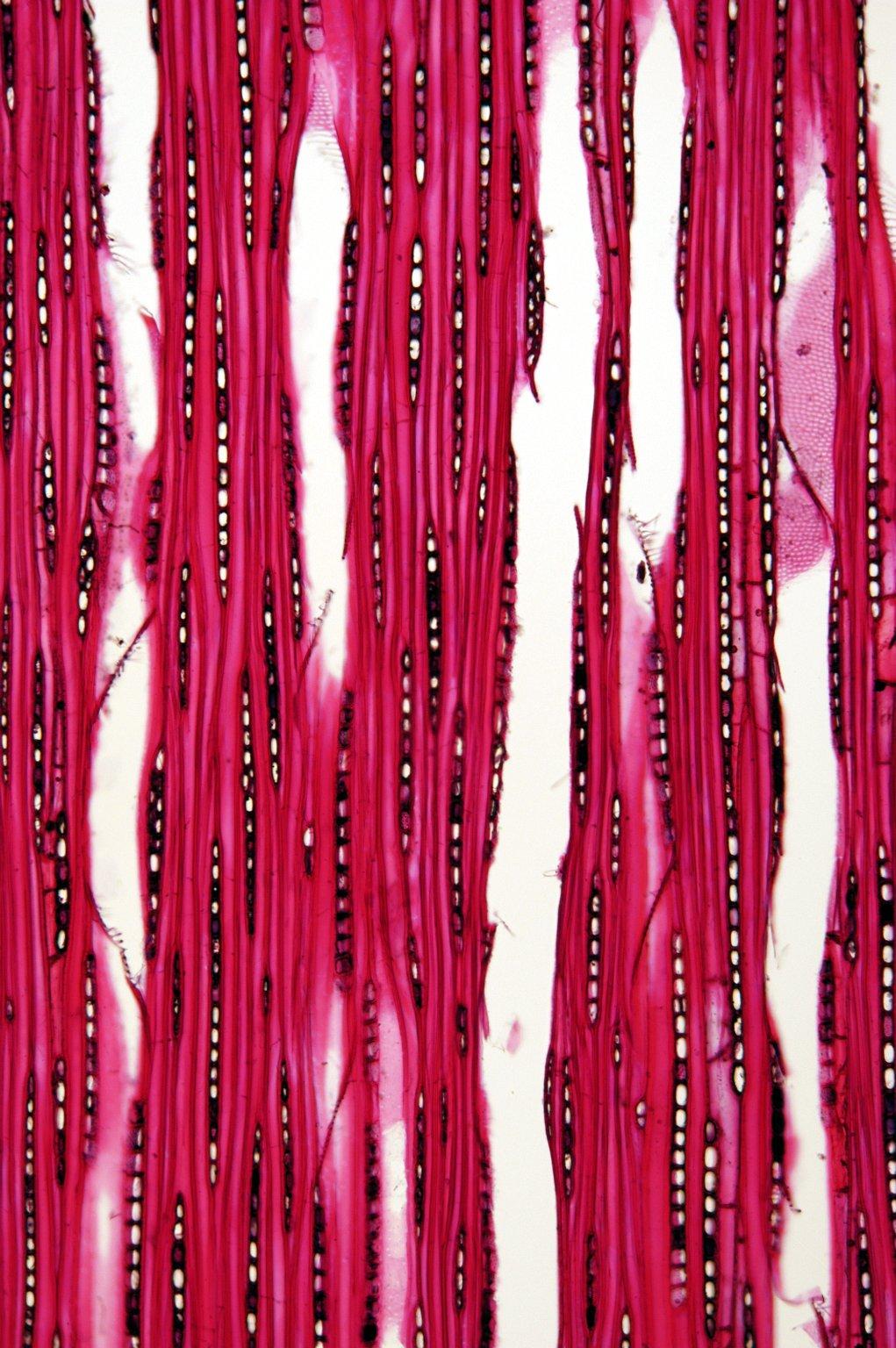 BETULACEAE Alnus japonica