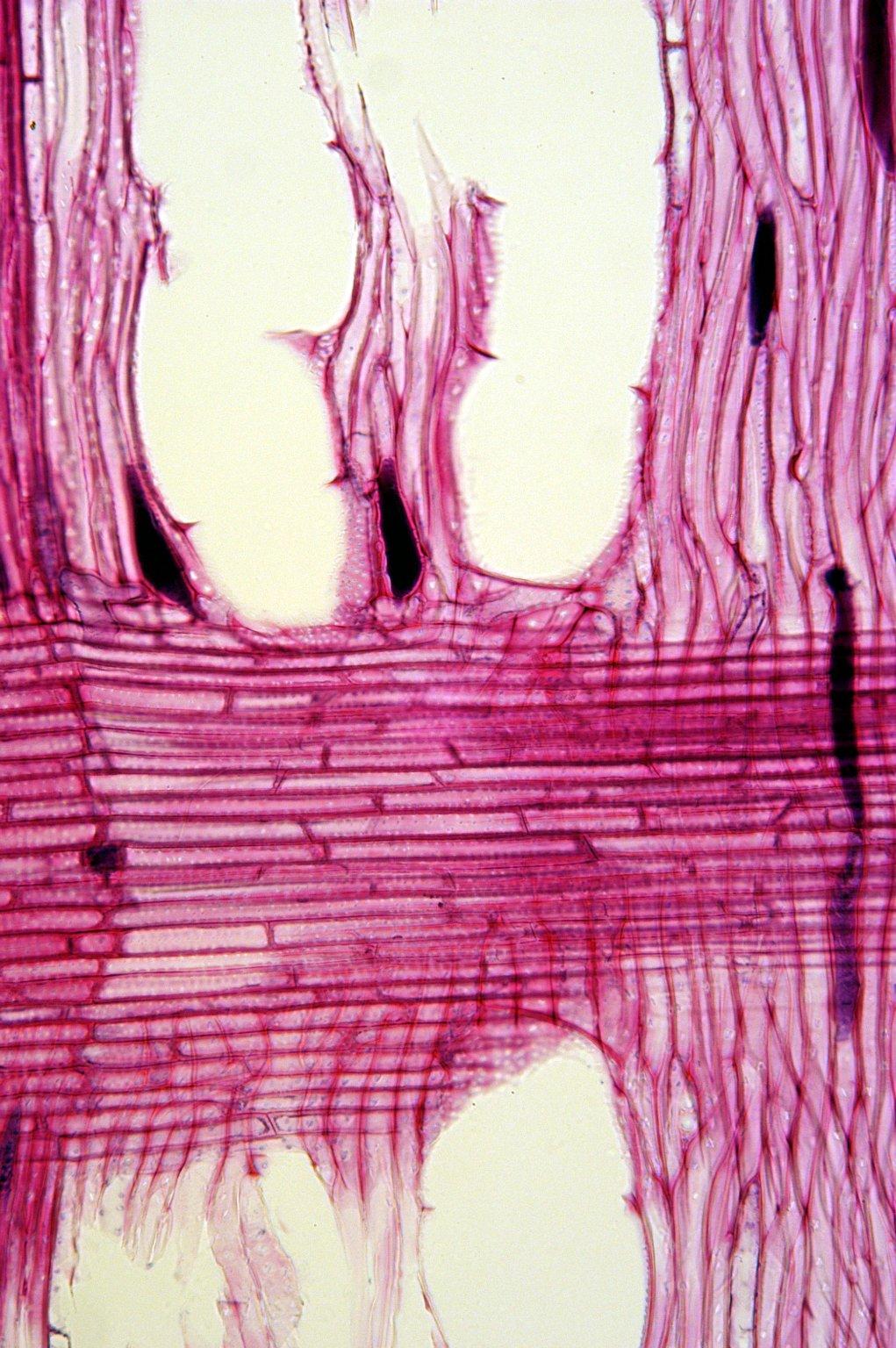 ELAEAGNACEAE Elaeagnus umbellata