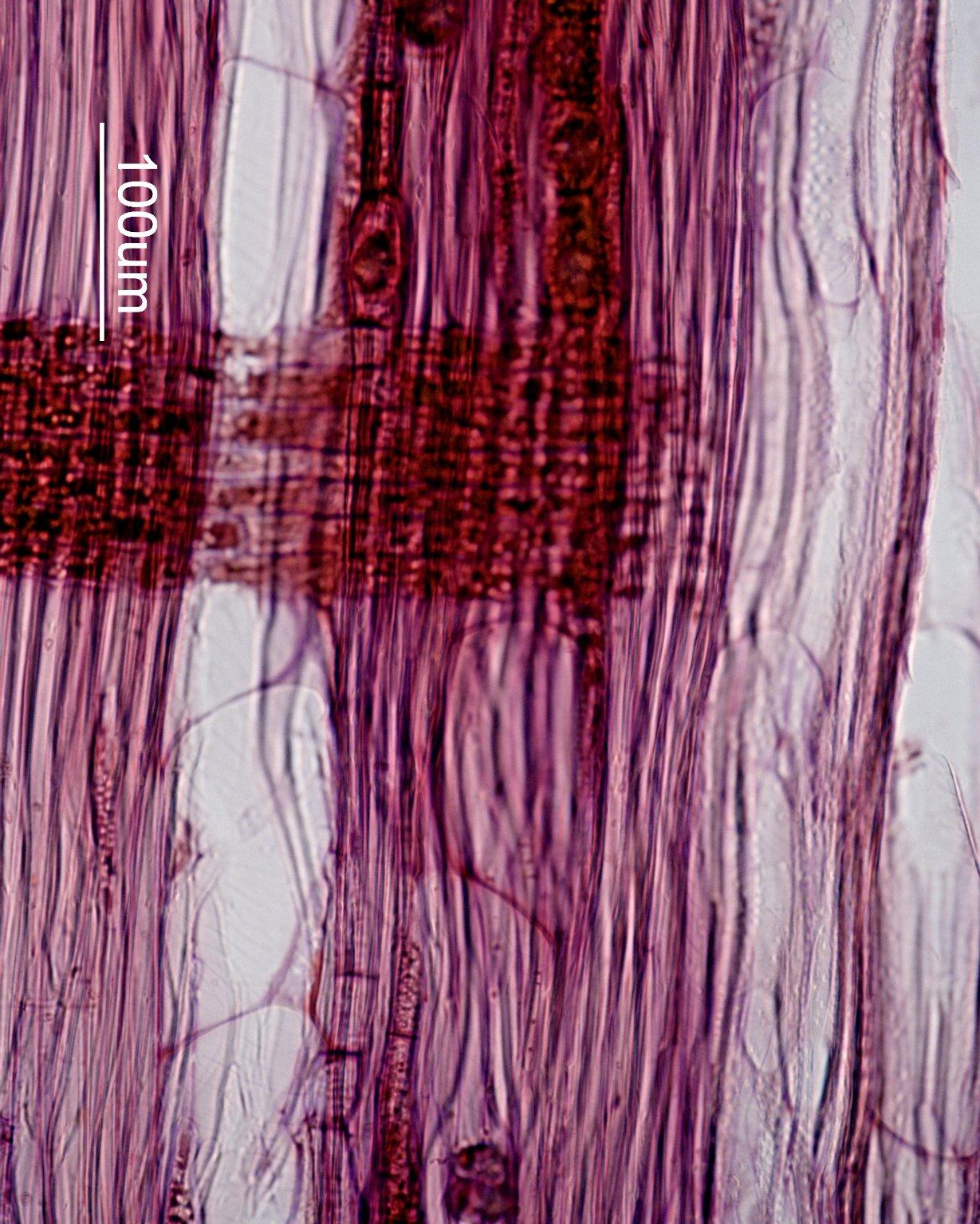ROSACEAE Prunus maximowiczii