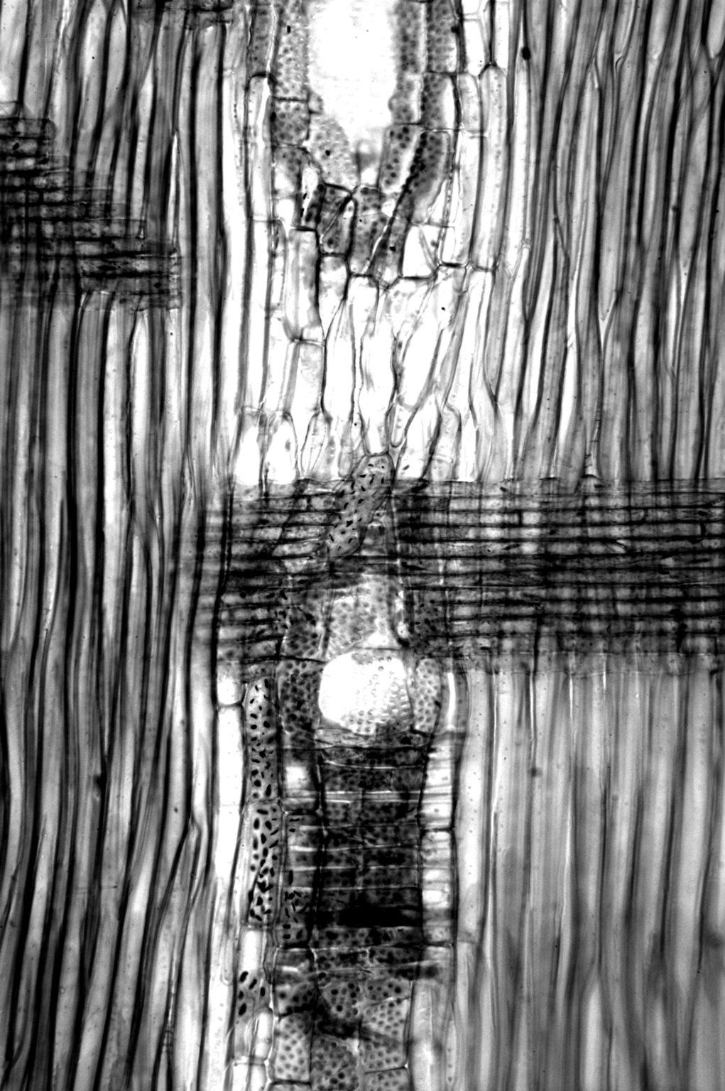 LEGUMINOSAE CAESALPINIOIDEAE Mimosoid Clade Albizia julibrissin