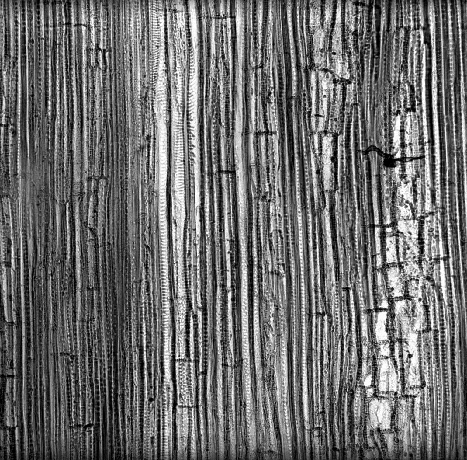 CHLORANTHACEAE Sarcandra glabra