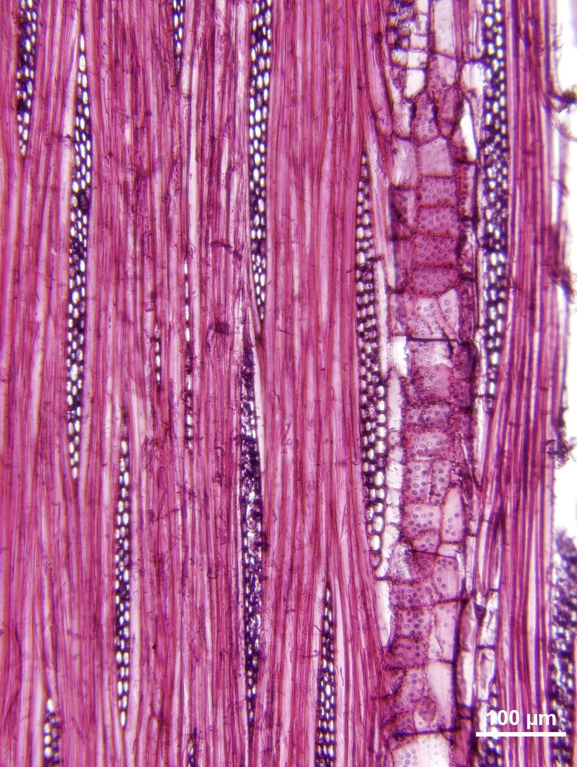 ULMACEAE Ampelocera edentula