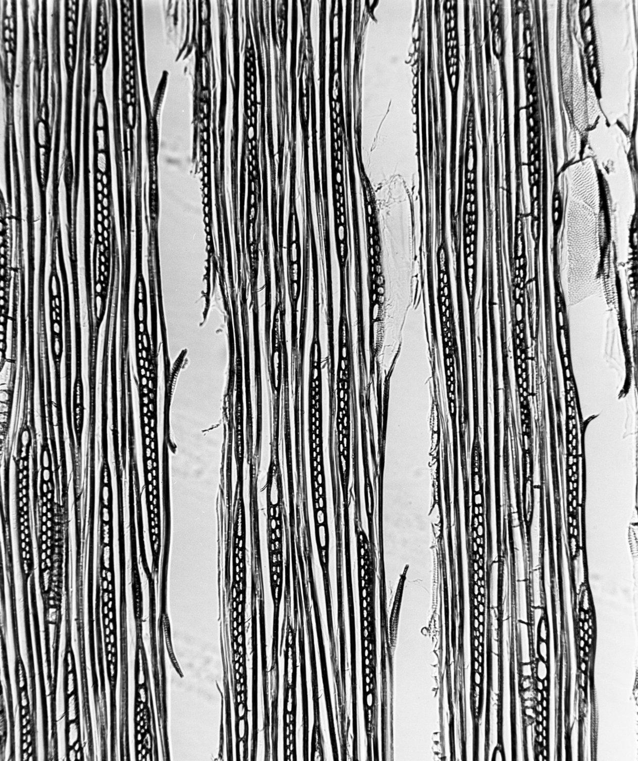 APOCYNACEAE Holarrhena congolensis