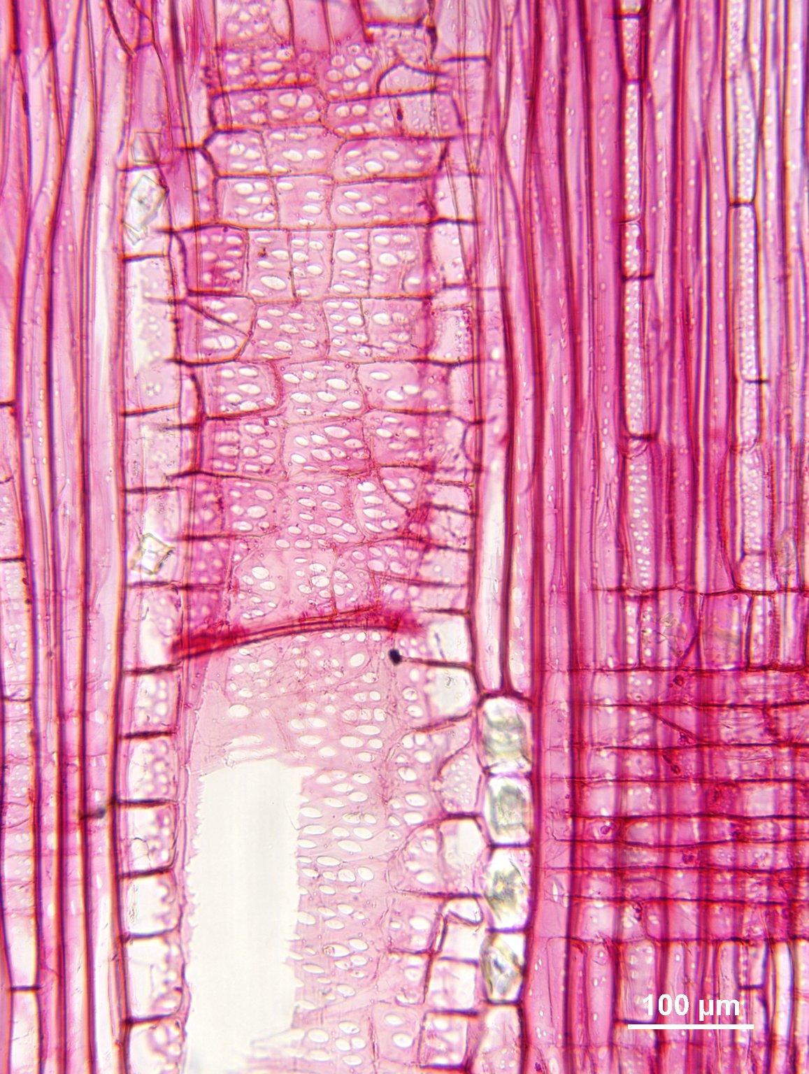 EUPHORBIACEAE Omphalea oleifera