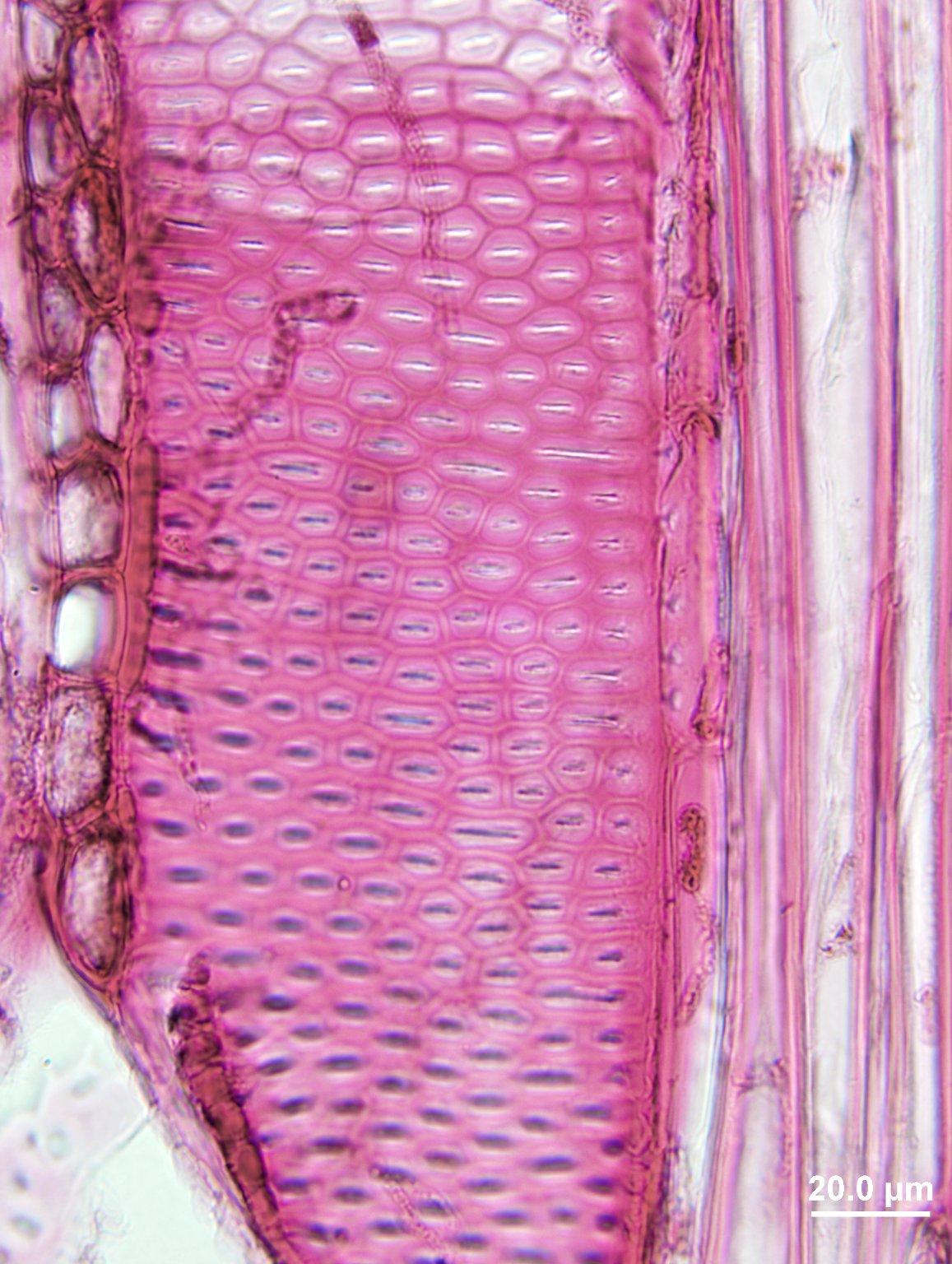 ANACARDIACEAE Toxicodendron striatum