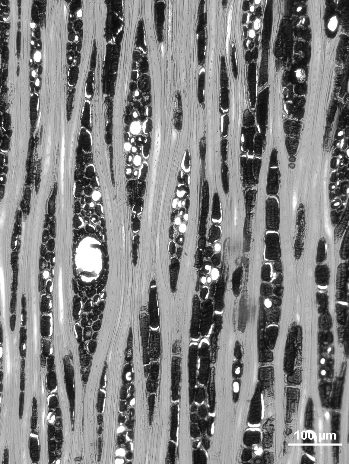 CALOPHYLLACEAE Mammea americana