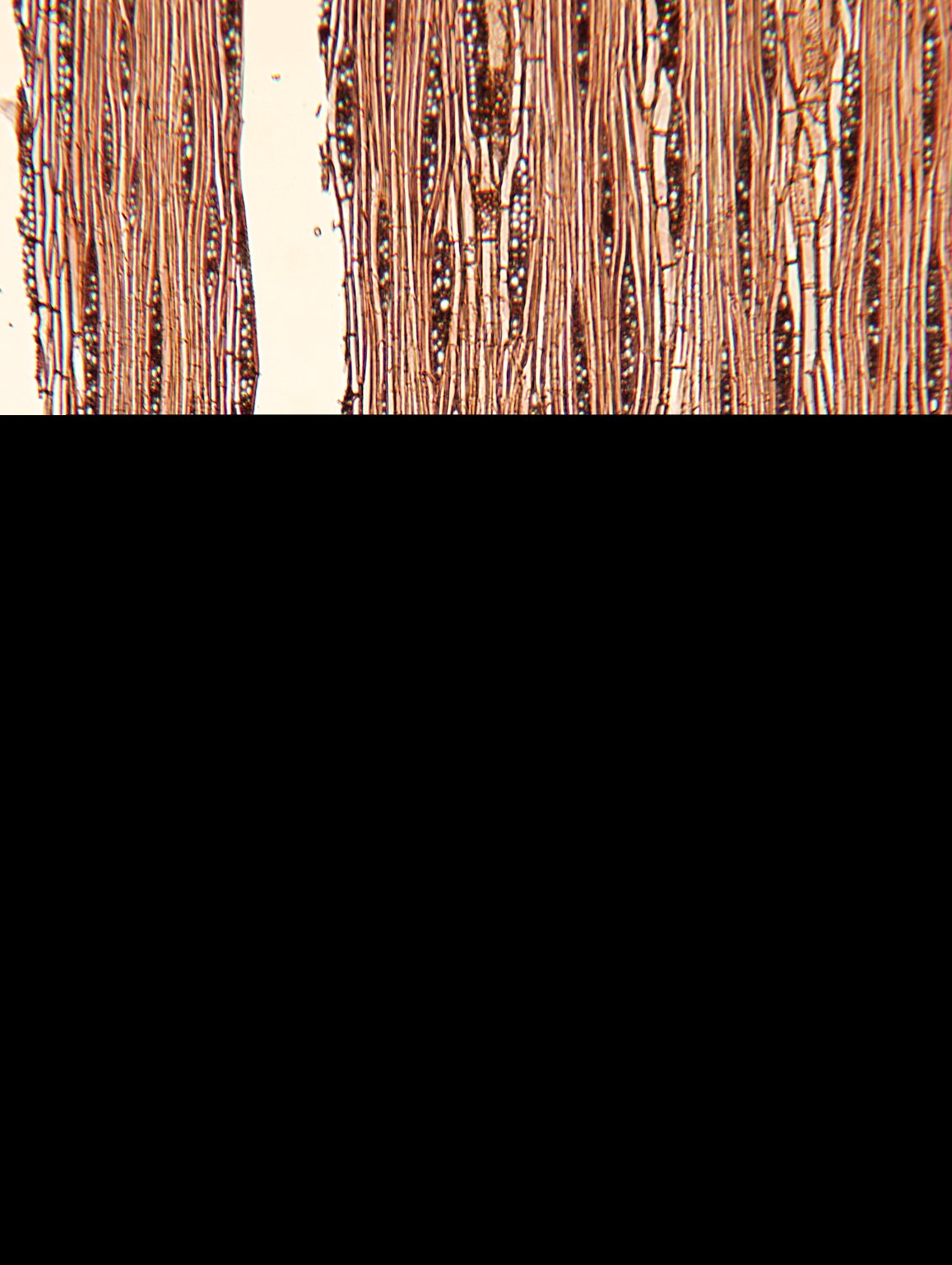 LEGUMINOSAE CAESALPINIOIDEAE Burkea africana