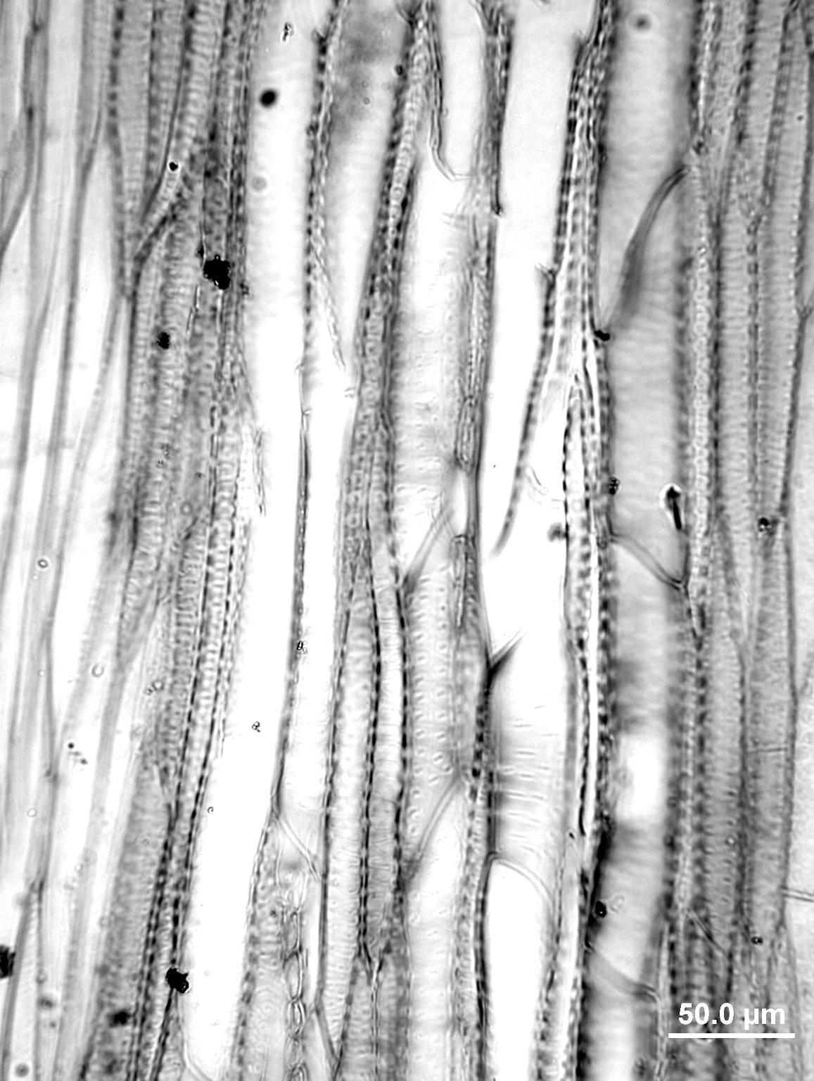 THYMELAEACEAE Dirca palustris