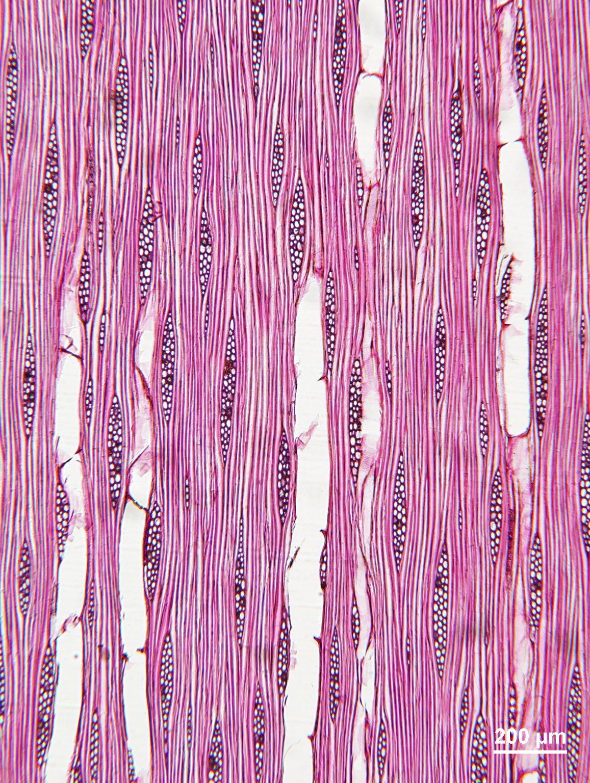 RUTACEAE Zanthoxylum melanostictum