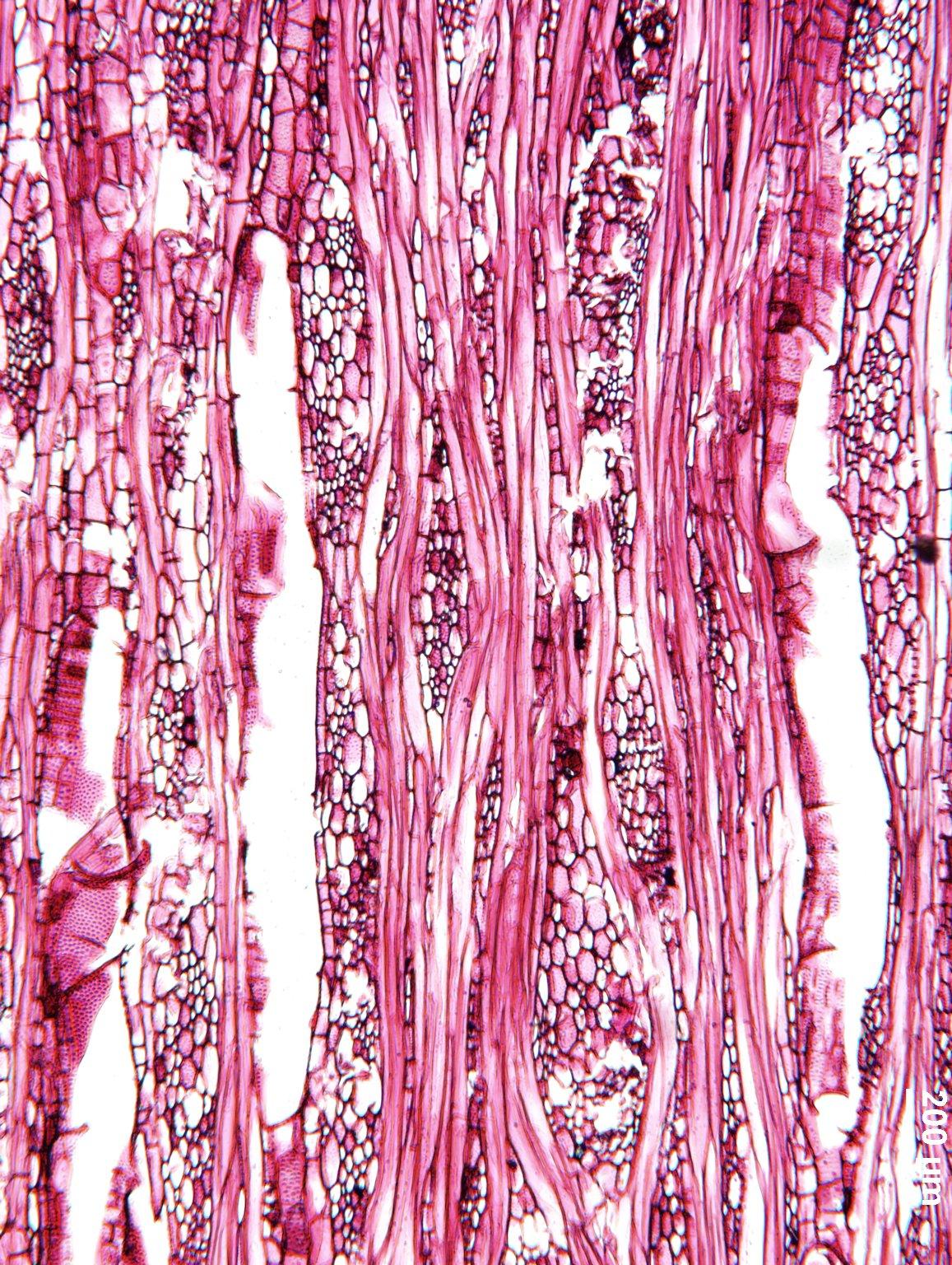 MALVACEAE GREWIOIDEAE Entelea arborescens