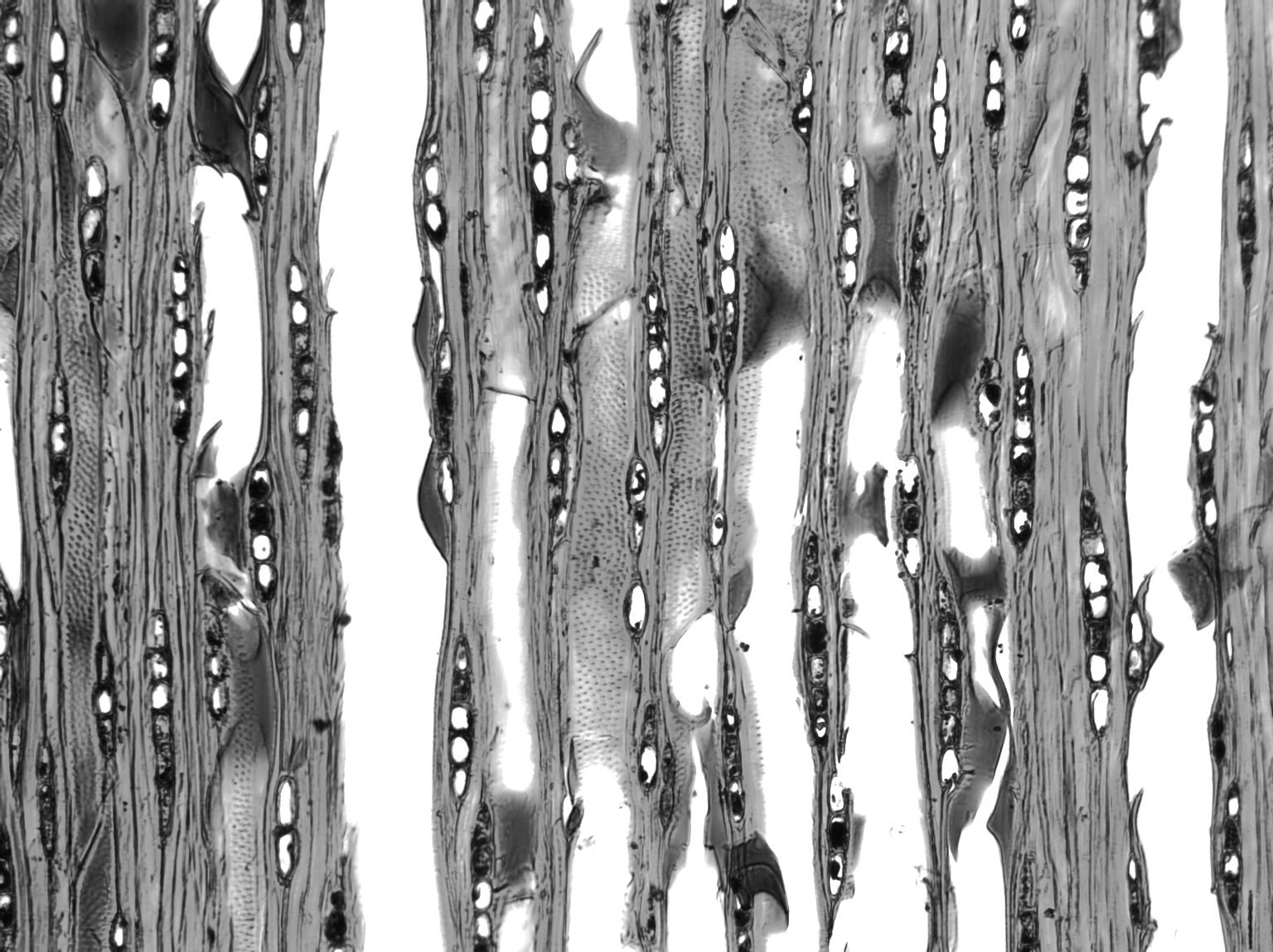 COMBRETACEAE Macropteranthes fitzalanii