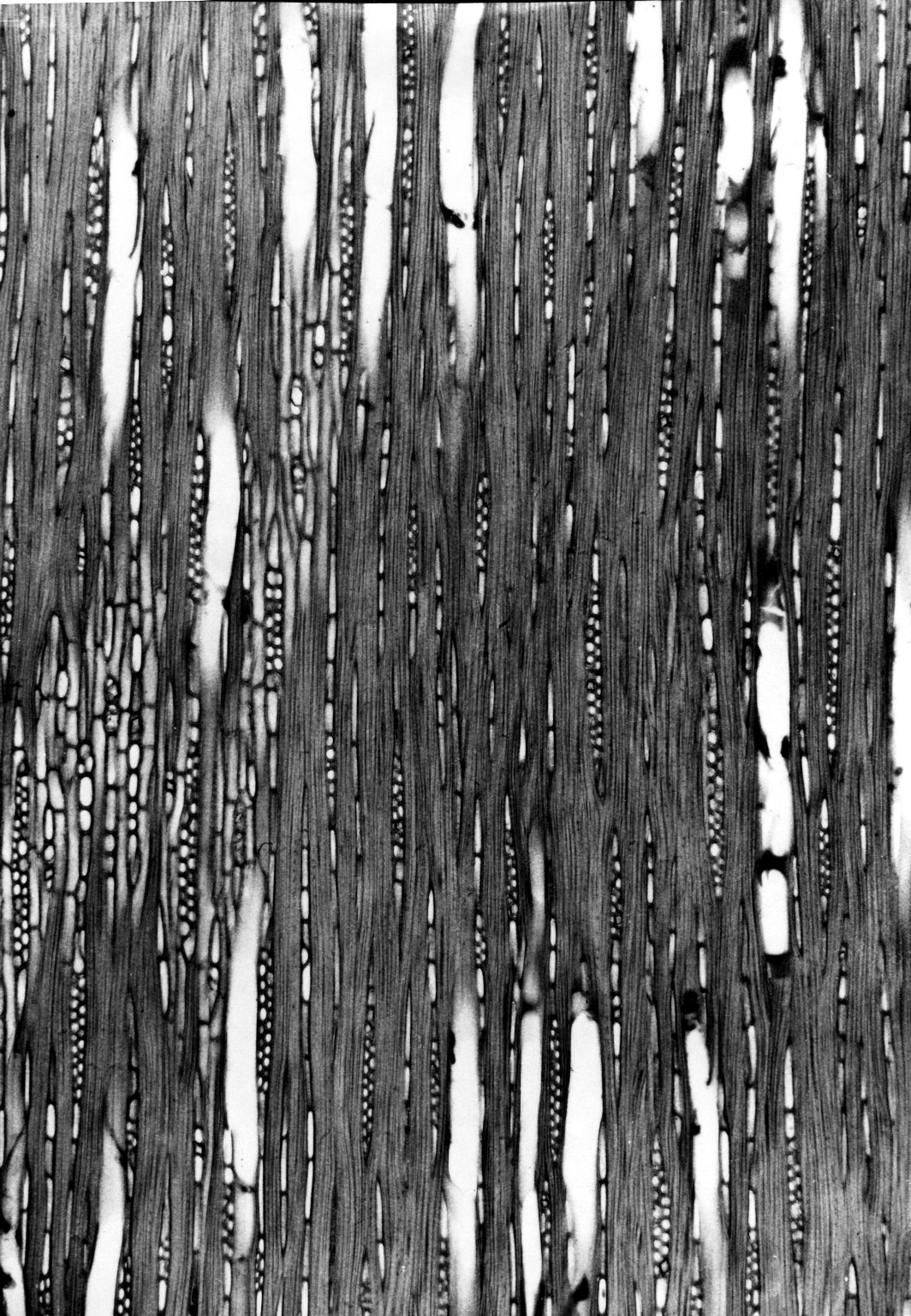CELASTRACEAE Erythrostelechia acuminata