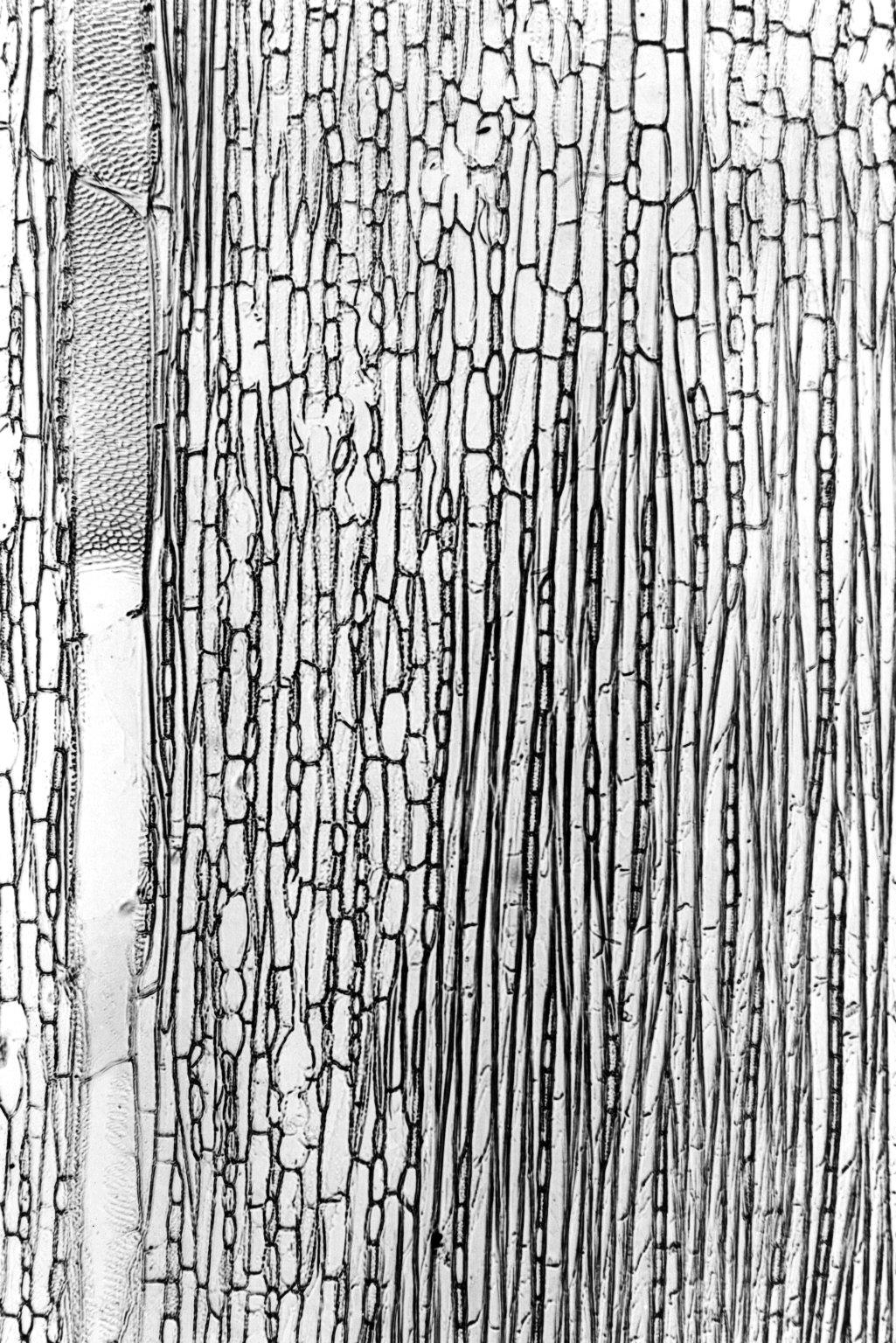 MELASTOMATACEAE Dichaetanthera cordifolia
