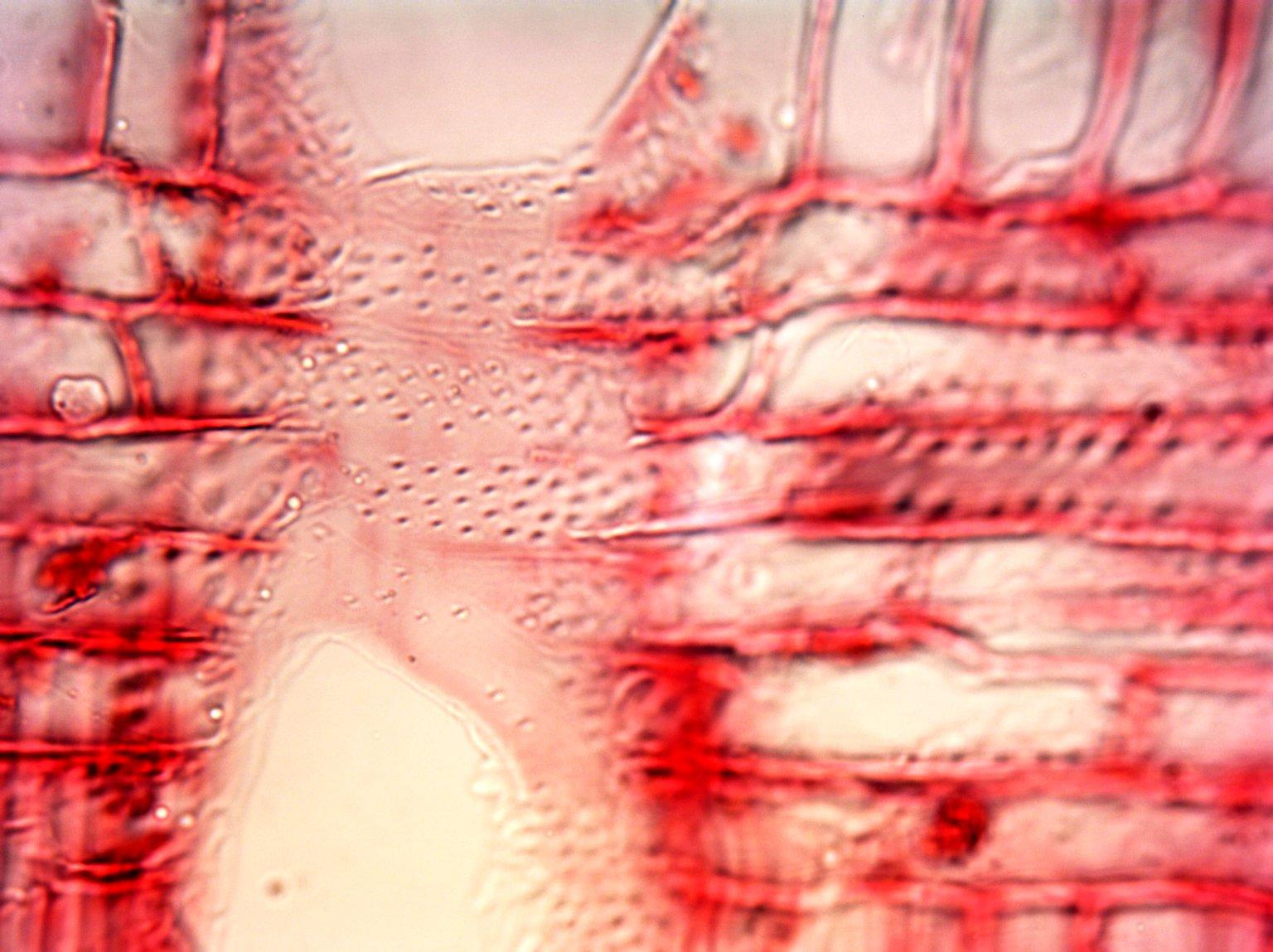 MALVACEAE MALVOIDEAE Hibiscus macrophyllus