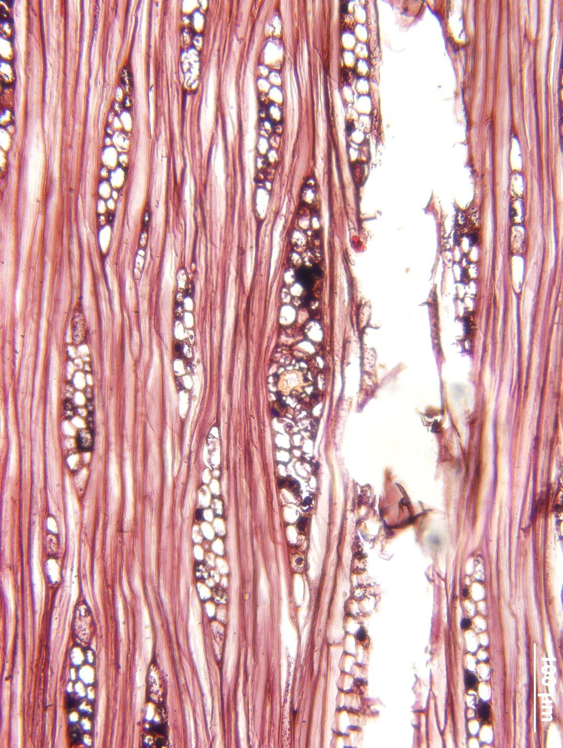 ANACARDIACEAE Metopium brownei